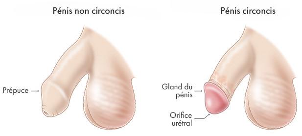 Papillomavirus homme circoncis. Papillomavirus homme urologue